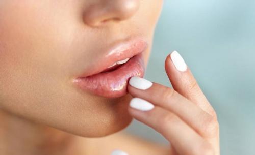 Πρόληψη και θεραπεία για τον επιχείλιο έρπητα