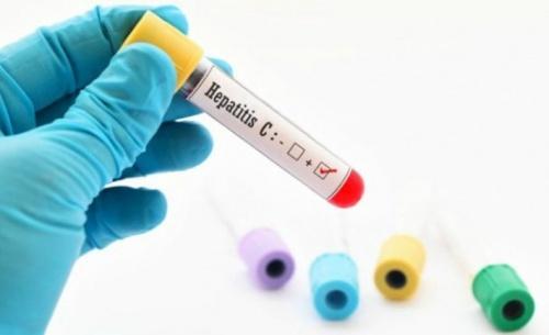 Δωρεάν εξετάσεις για την ηπατίτιδα σε νησιά του Αιγαίου και του Ιονίου